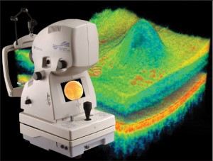 oct-optical-coherence-tomography-3